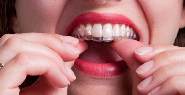 lathatatlan-fogszabalyozas-3