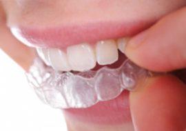 lathatatlan-fogszabalyozas-4