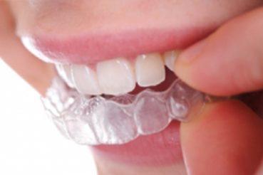 Láthatatlan fogszabályozás